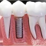 Имплантация зубов – хорошо или плохо?